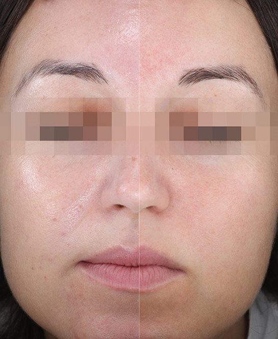 Lice žene pre nanošenja jednog i drugog preparata na po jednu polovinu lica